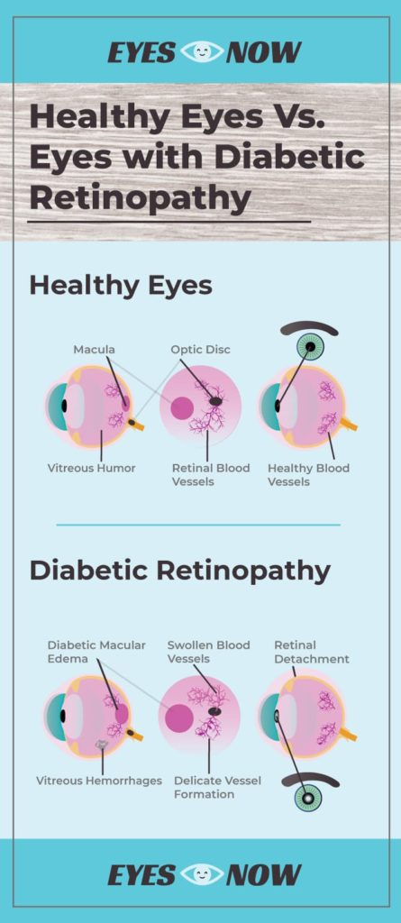Diagram showing the difference between healthy eyes and eyes with diabetic retinopathy