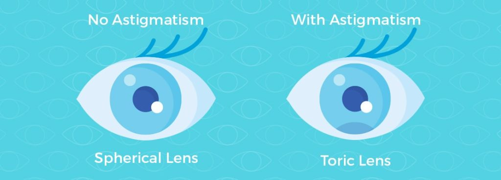 Left eye showing no astigmatism with spherical lens and right eye showing astigmatism with toric lens